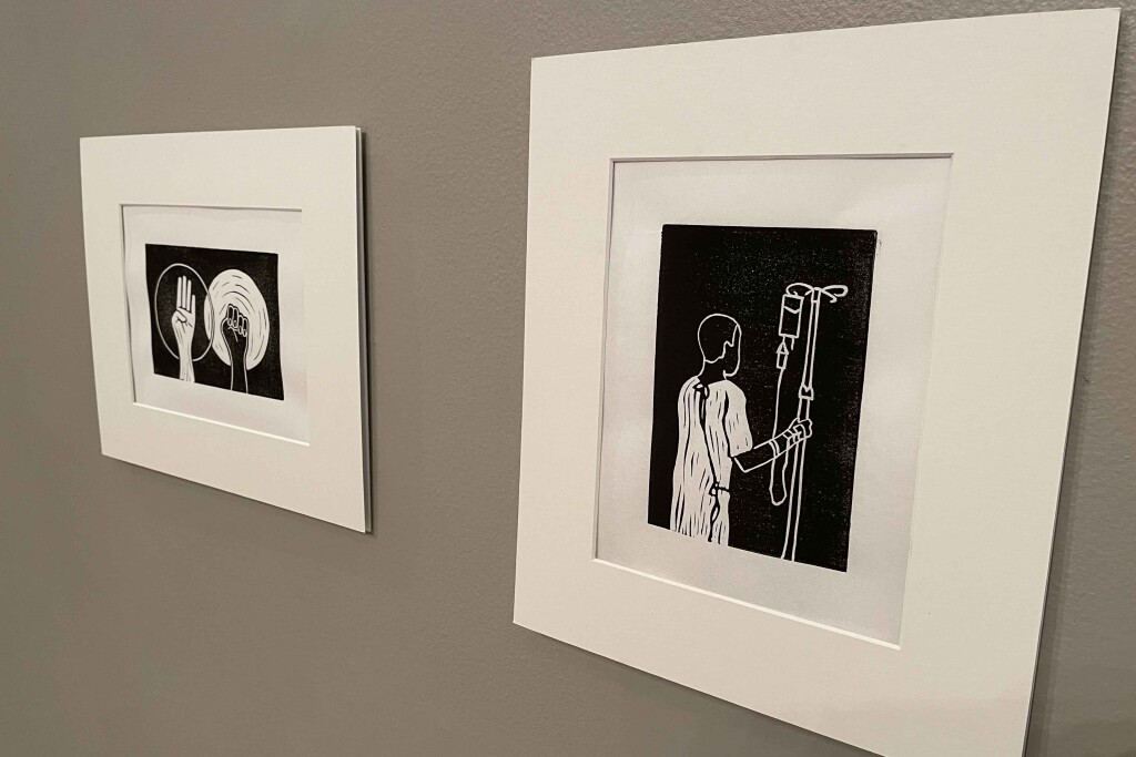 BBergan Blommers senior exhibit includes a black and white image with the ASL letters B and S. The other is the back side of a person holding on to an IV cart.